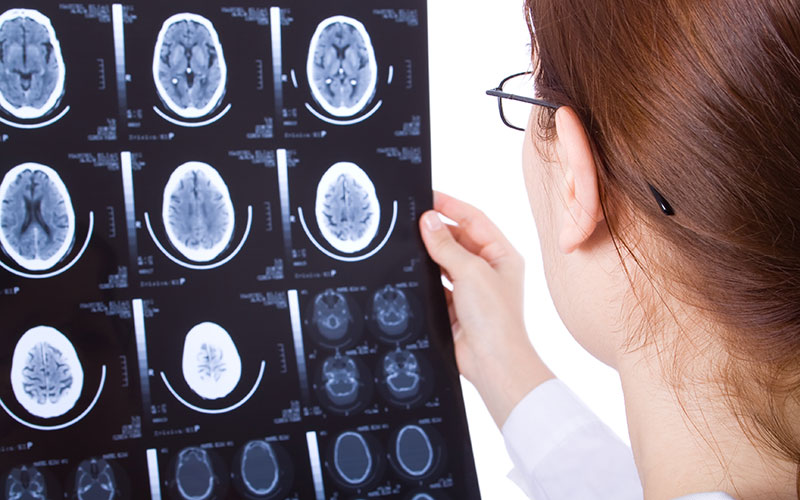 Claim For A Brain Injury Mulderrigs Solicitors